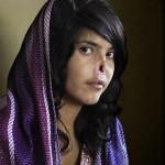 Afegã mutilada é melhor foto de 2010